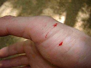 рана от укуса змеи